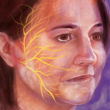 Bell's Palsy Editorial LMOORE