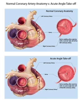 Coronary Anatomy LMOORE