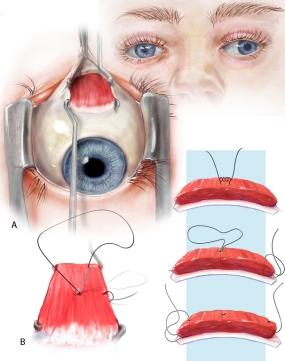 Pediatric Strabismus Procedure Plate 1 LMOORE